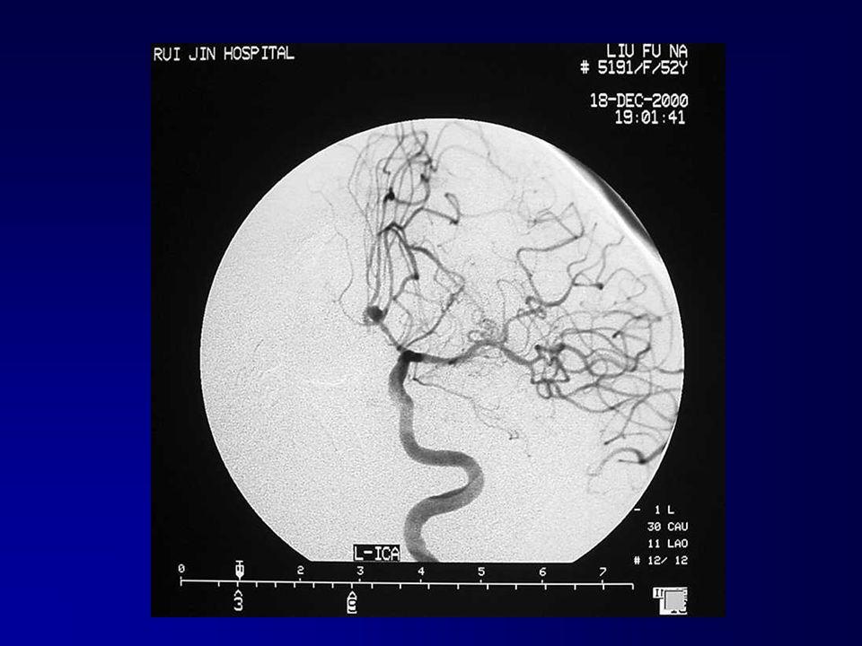 DSA angiographie négative lanévrysme de lartère communicative antérieur cérébral lanévrysme de lartère communicative antérieur cérébral