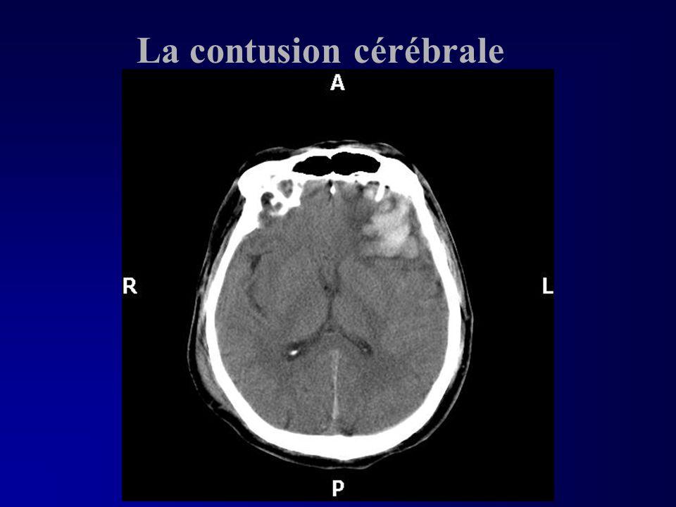 La contusion cérébrale
