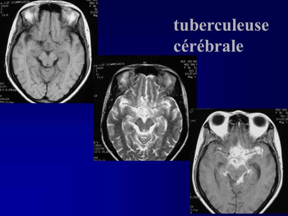 tuberculeuse cérébrale