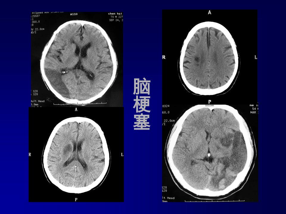 Infarctus cerebral