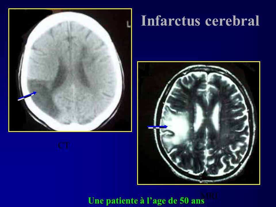 CT MRI Une patiente à lage de 50 ans Infarctus cerebral
