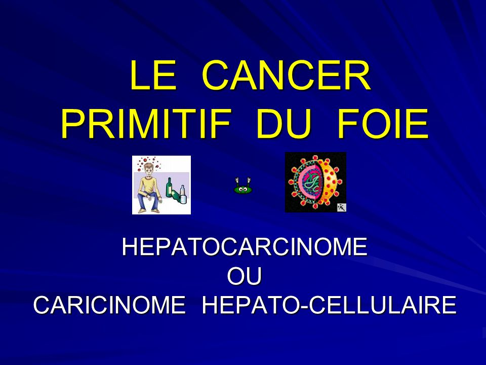 LE CANCER PRIMITIF DU FOIE HEPATOCARCINOME OU CARICINOME HEPATO-CELLULAIRE LE CANCER PRIMITIF DU FOIE HEPATOCARCINOME OU CARICINOME HEPATO-CELLULAIRE