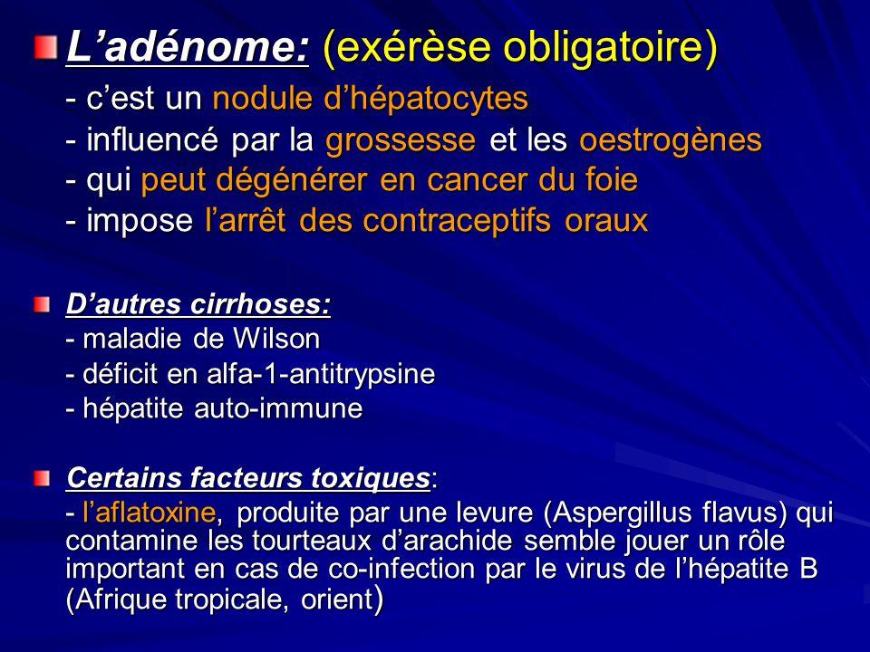 Ladénome: (exérèse obligatoire) - cest un nodule dhépatocytes - influencé par la grossesse et les oestrogènes - qui peut dégénérer en cancer du foie - impose larrêt des contraceptifs oraux Dautres cirrhoses: - maladie de Wilson - déficit en alfa-1-antitrypsine - hépatite auto-immune Certains facteurs toxiques: - laflatoxine, produite par une levure (Aspergillus flavus) qui contamine les tourteaux darachide semble jouer un rôle important en cas de co-infection par le virus de lhépatite B (Afrique tropicale, orient )