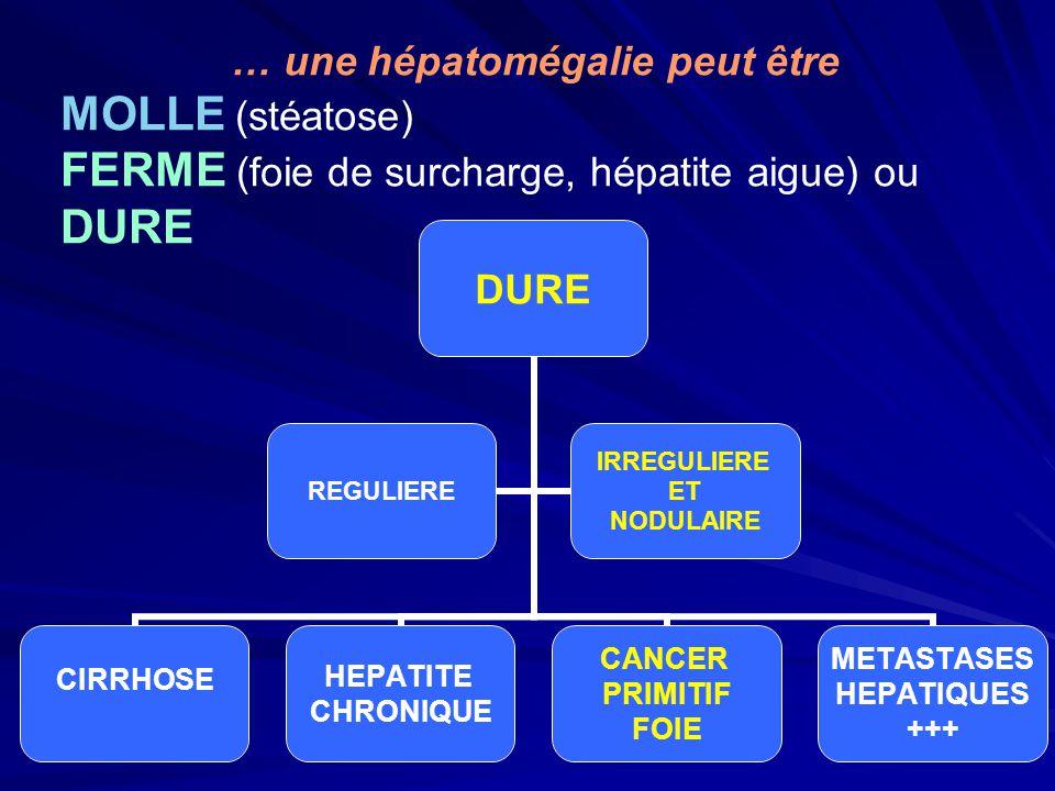 DURE CIRRHOSEHEPATITE CHRONIQUE CANCER PRIMITIF FOIE METASTASES HEPATIQUES +++ REGULIERE IRREGULIERE ET NODULAIRE … une hépatomégalie peut être MOLLE (stéatose) FERME (foie de surcharge, hépatite aigue) ou DURE