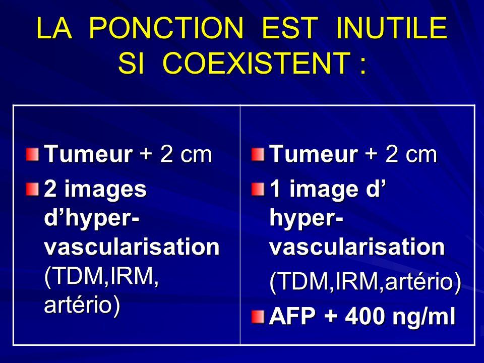 LA PONCTION EST INUTILE SI COEXISTENT : Tumeur + 2 cm 2 images dhyper- vascularisation (TDM,IRM, artério) Tumeur + 2 cm 1 image d hyper- vascularisation (TDM,IRM,artério) AFP + 400 ng/ml