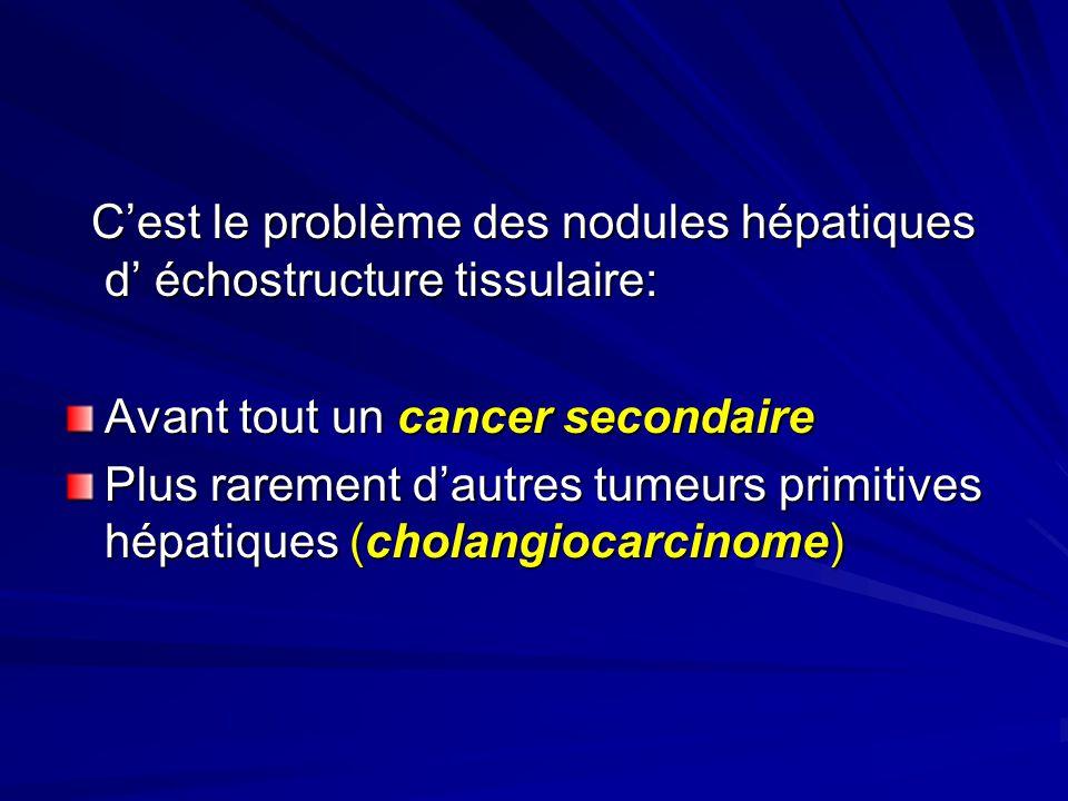 Cest le problème des nodules hépatiques d échostructure tissulaire: Cest le problème des nodules hépatiques d échostructure tissulaire: Avant tout un cancer secondaire Plus rarement dautres tumeurs primitives hépatiques (cholangiocarcinome)