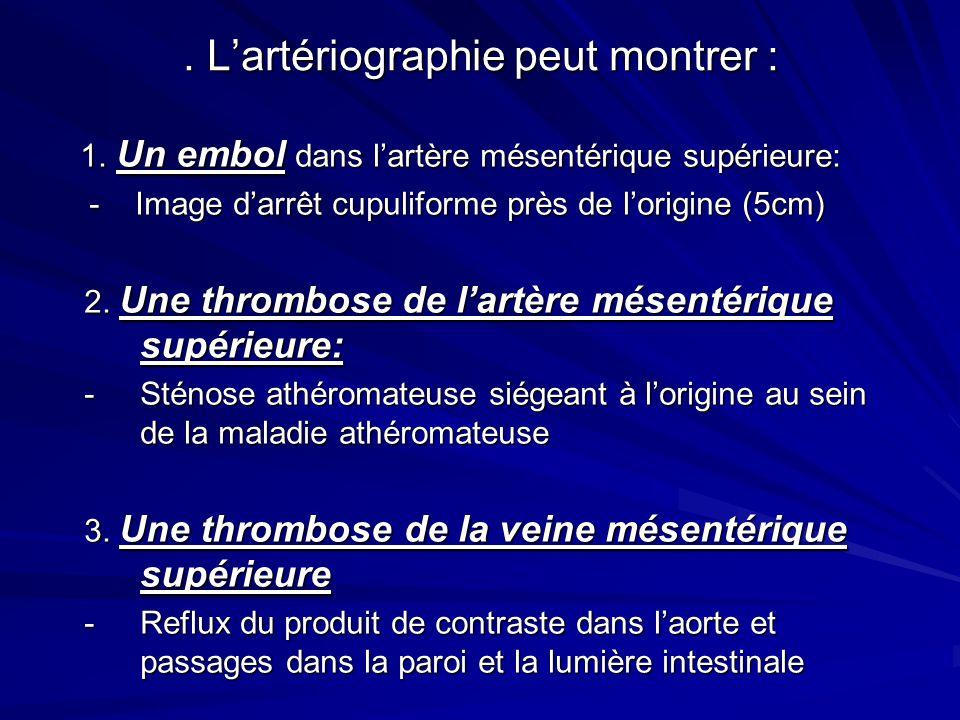 Lartériographie peut montrer : 1.Un embol dans lartère mésentérique supérieure: 1.