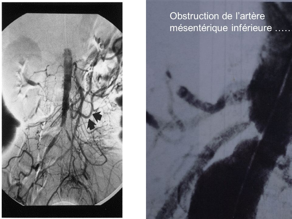 Obstruction de lartère mésentérique inférieure ……