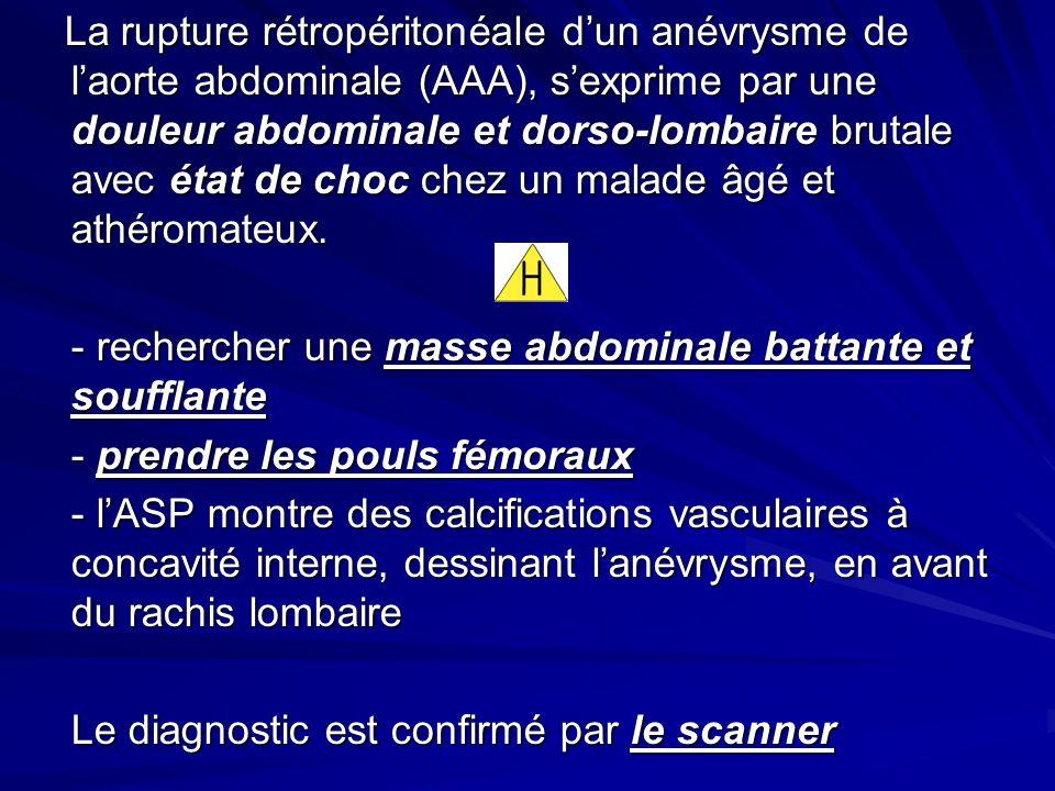 La rupture rétropéritonéale dun anévrysme de laorte abdominale (AAA), sexprime par une douleur abdominale et dorso-lombaire brutale avec état de choc chez un malade âgé et athéromateux.