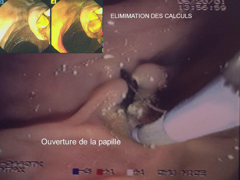 Ouverture de la papille ELIMIMATION DES CALCULS