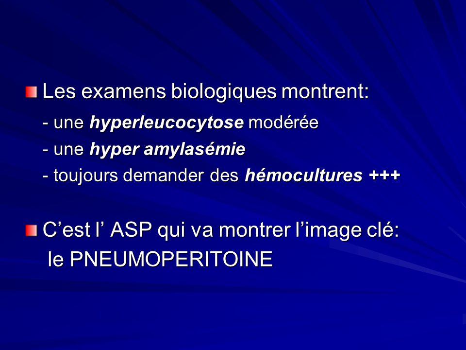 Les examens biologiques montrent: - une hyperleucocytose modérée - une hyper amylasémie - toujours demander des hémocultures +++ Cest l ASP qui va mon
