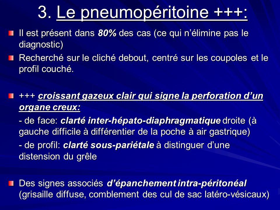 3. Le pneumopéritoine +++: Il est présent dans 80% des cas (ce qui nélimine pas le diagnostic) Recherché sur le cliché debout, centré sur les coupoles