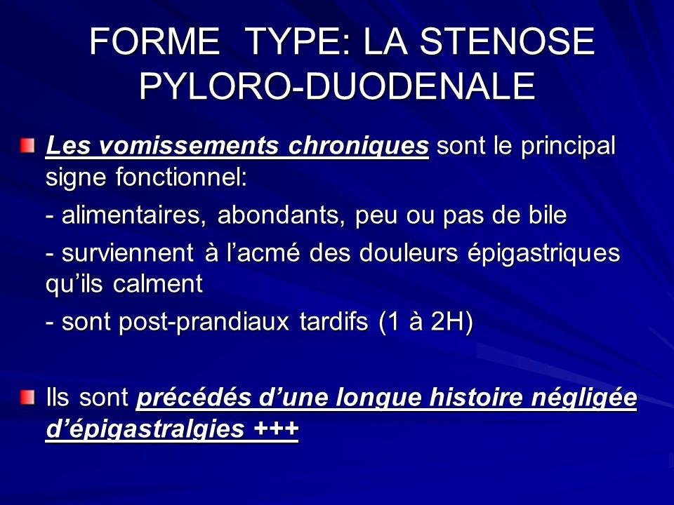 FORME TYPE: LA STENOSE PYLORO-DUODENALE FORME TYPE: LA STENOSE PYLORO-DUODENALE Les vomissements chroniques sont le principal signe fonctionnel: - ali
