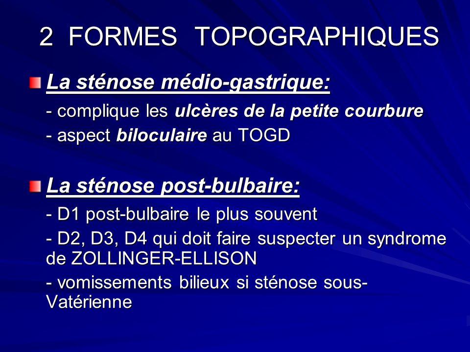 2 FORMES TOPOGRAPHIQUES 2 FORMES TOPOGRAPHIQUES La sténose médio-gastrique: - complique les ulcères de la petite courbure - aspect biloculaire au TOGD
