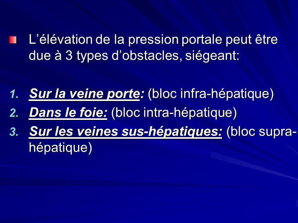 Lélévation de la pression portale peut être due à 3 types dobstacles, siégeant: 1. Sur la veine porte: (bloc infra-hépatique) 2. Dans le foie: (bloc i