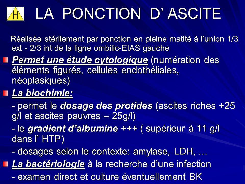 LA PONCTION D ASCITE Réalisée stérilement par ponction en pleine matité à lunion 1/3 ext - 2/3 int de la ligne ombilic-EIAS gauche Réalisée stérilemen