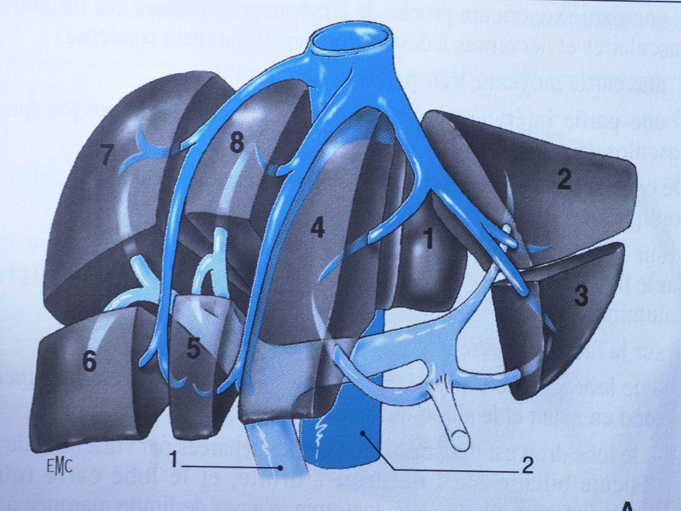 Le diagnostic est évoqué devant: Le diagnostic est évoqué devant: Une hépatomégalie douloureuse, molle avec reflux hépato-jugulaire (sauf BUDD-CHIARI) Des signes périphériques dinsuffisance cardiaque droite: turgescence jugulaire, oedèmes des membres inférieurs, oligurie Léchographie montre une dilatation des cavités cardiaques droites et des VSH, associées à une oligurie PLA +++: ascite riches en protides (+ 25 g/l)
