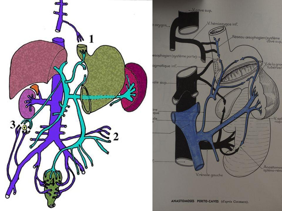 Hépatomégalie avec ascite: VCI, Aorte et tronc porte bien vus