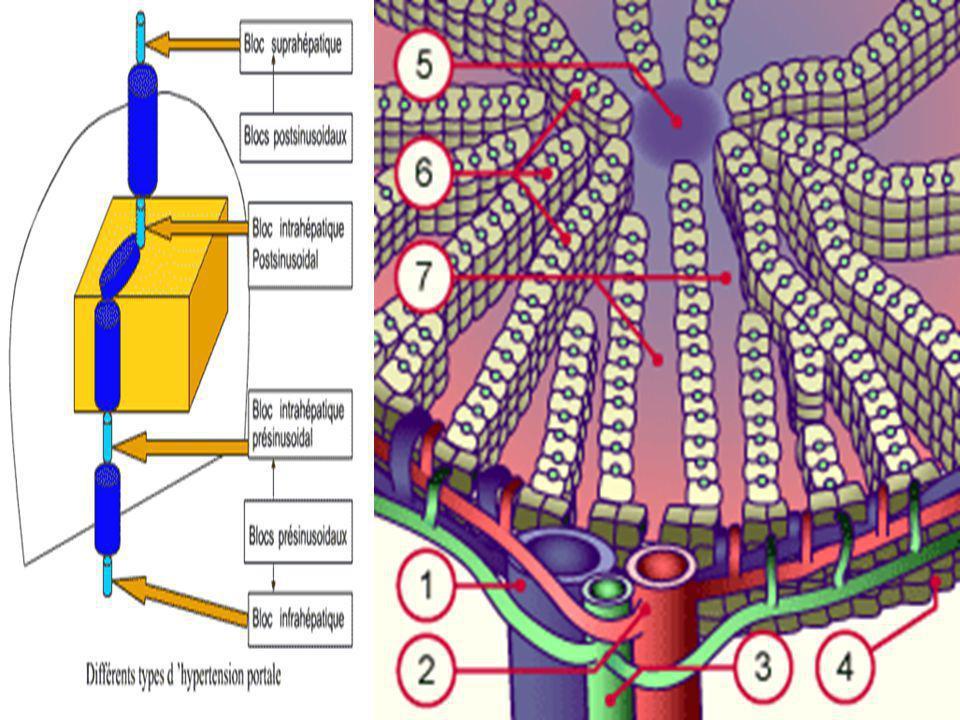 Lélévation de la pression portale peut être due à 3 types dobstacles, siégeant: 1.