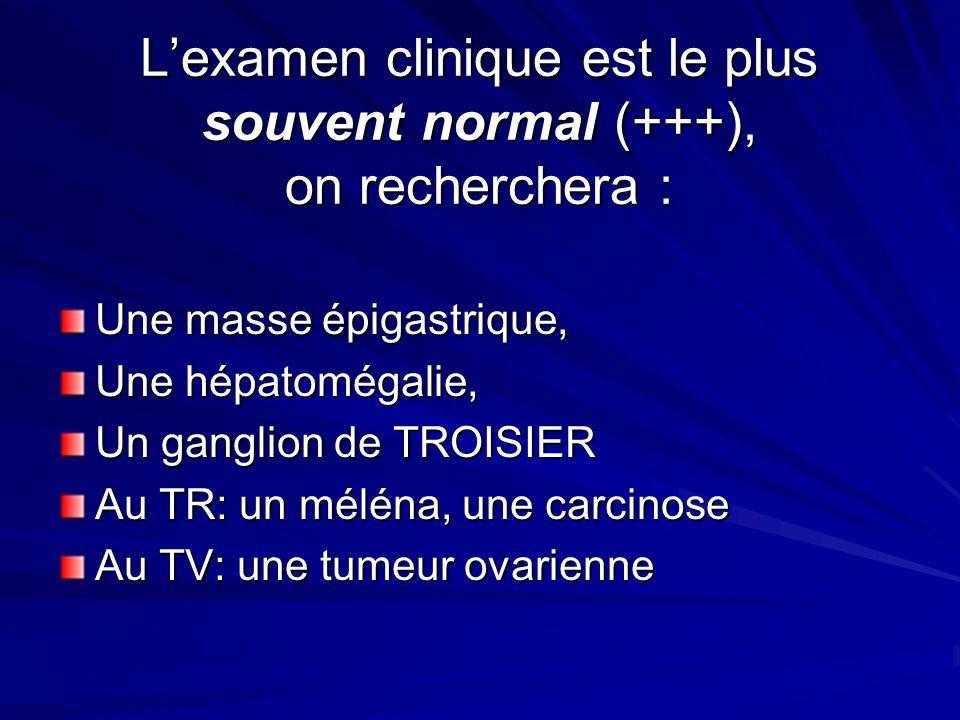 Lexamen clinique est le plus souvent normal (+++), on recherchera : Une masse épigastrique, Une hépatomégalie, Un ganglion de TROISIER Au TR: un mélén