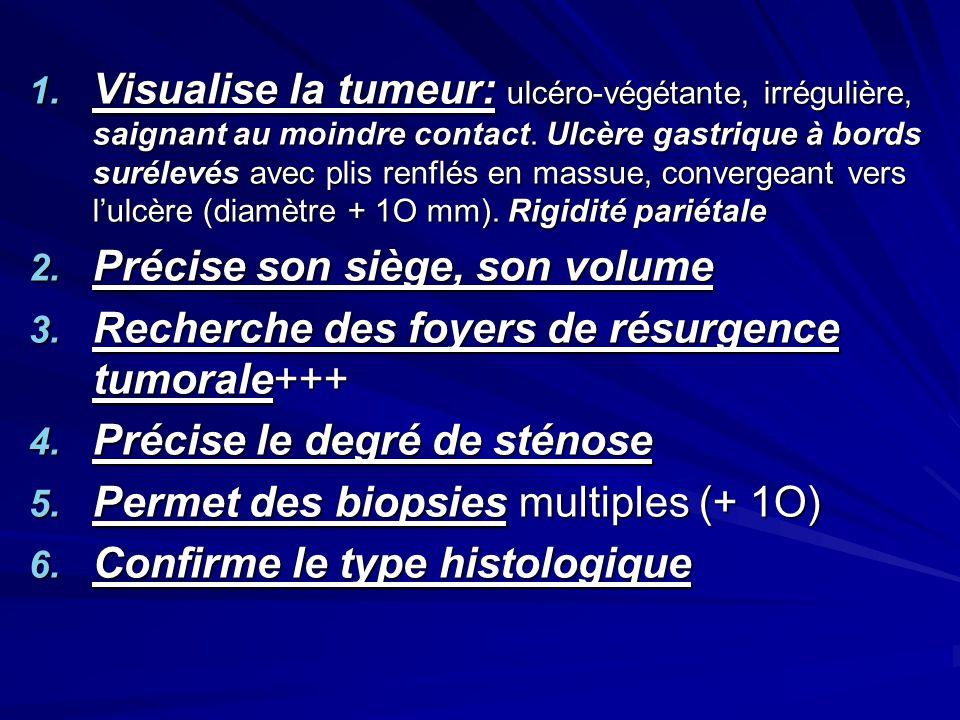 1. Visualise la tumeur: ulcéro-végétante, irrégulière, saignant au moindre contact. Ulcère gastrique à bords surélevés avec plis renflés en massue, co