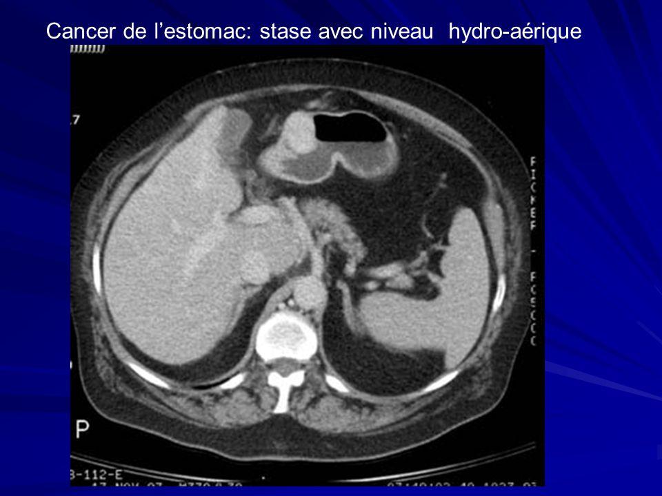 Cancer de lestomac: stase avec niveau hydro-aérique