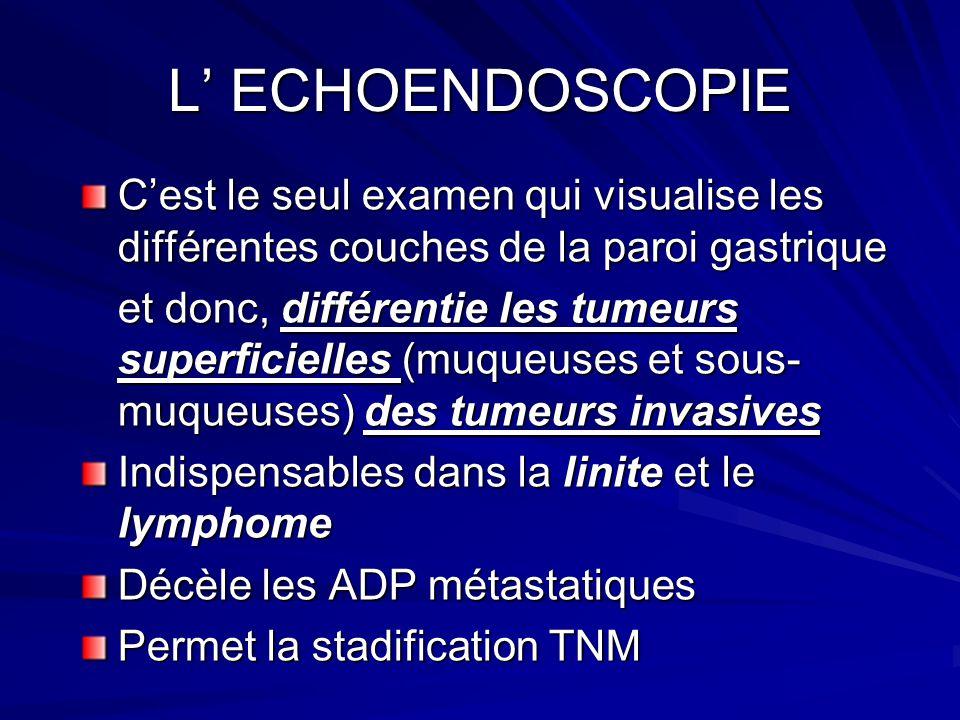 L ECHOENDOSCOPIE Cest le seul examen qui visualise les différentes couches de la paroi gastrique et donc, différentie les tumeurs superficielles (muqu