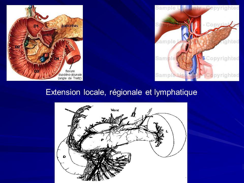 Extension locale, régionale et lymphatique