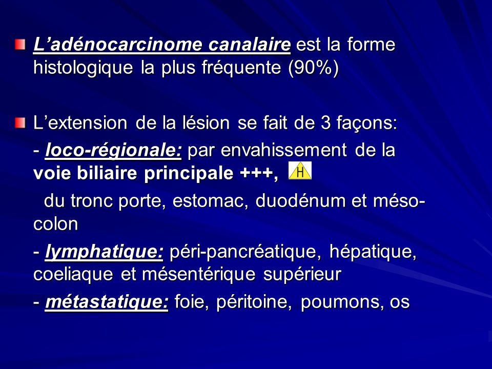 Ladénocarcinome canalaire est la forme histologique la plus fréquente (90%) Lextension de la lésion se fait de 3 façons: - loco-régionale: par envahis