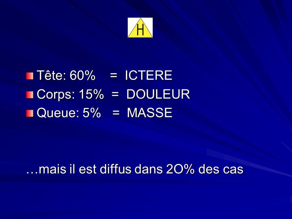 Tête: 60% = ICTERE Corps: 15% = DOULEUR Queue: 5% = MASSE …mais il est diffus dans 2O% des cas