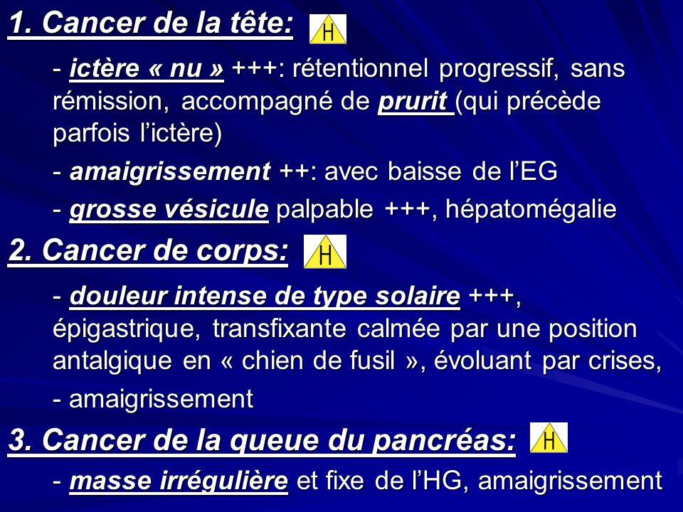 1. Cancer de la tête: - ictère « nu » +++: rétentionnel progressif, sans rémission, accompagné de prurit (qui précède parfois lictère) - amaigrissemen