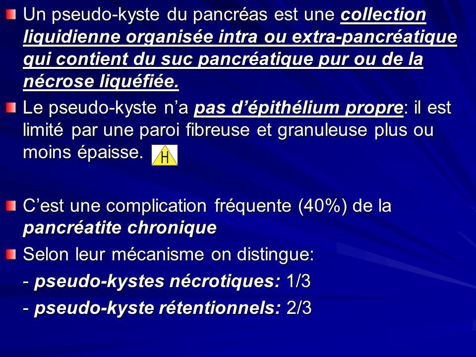 Un pseudo-kyste du pancréas est une collection liquidienne organisée intra ou extra-pancréatique qui contient du suc pancréatique pur ou de la nécrose