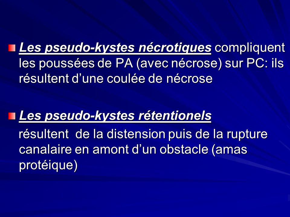 Les pseudo-kystes nécrotiques compliquent les poussées de PA (avec nécrose) sur PC: ils résultent dune coulée de nécrose Les pseudo-kystes rétentionel
