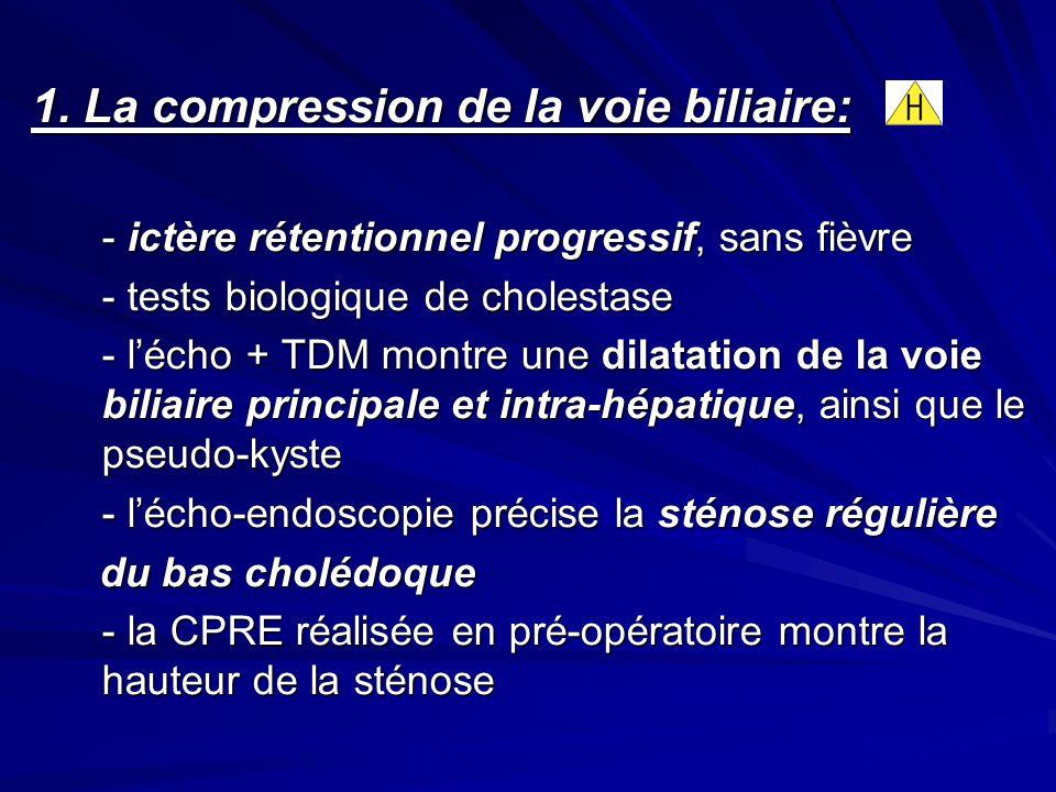1. La compression de la voie biliaire: - ictère rétentionnel progressif, sans fièvre - tests biologique de cholestase - lécho + TDM montre une dilatat