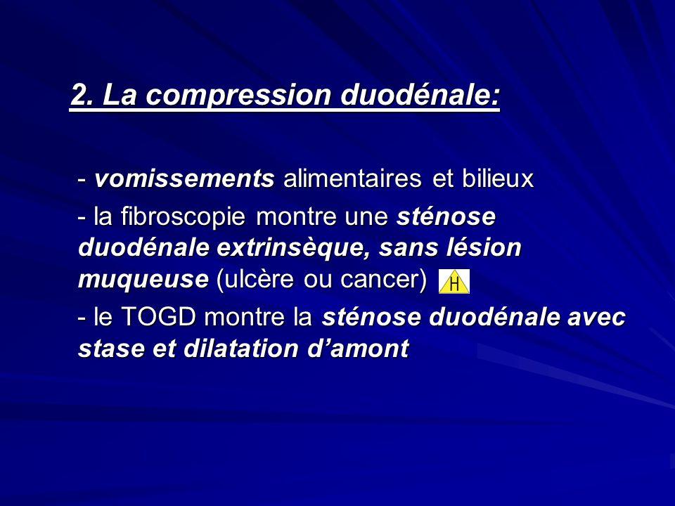 2. La compression duodénale: 2. La compression duodénale: - vomissements alimentaires et bilieux - la fibroscopie montre une sténose duodénale extrins