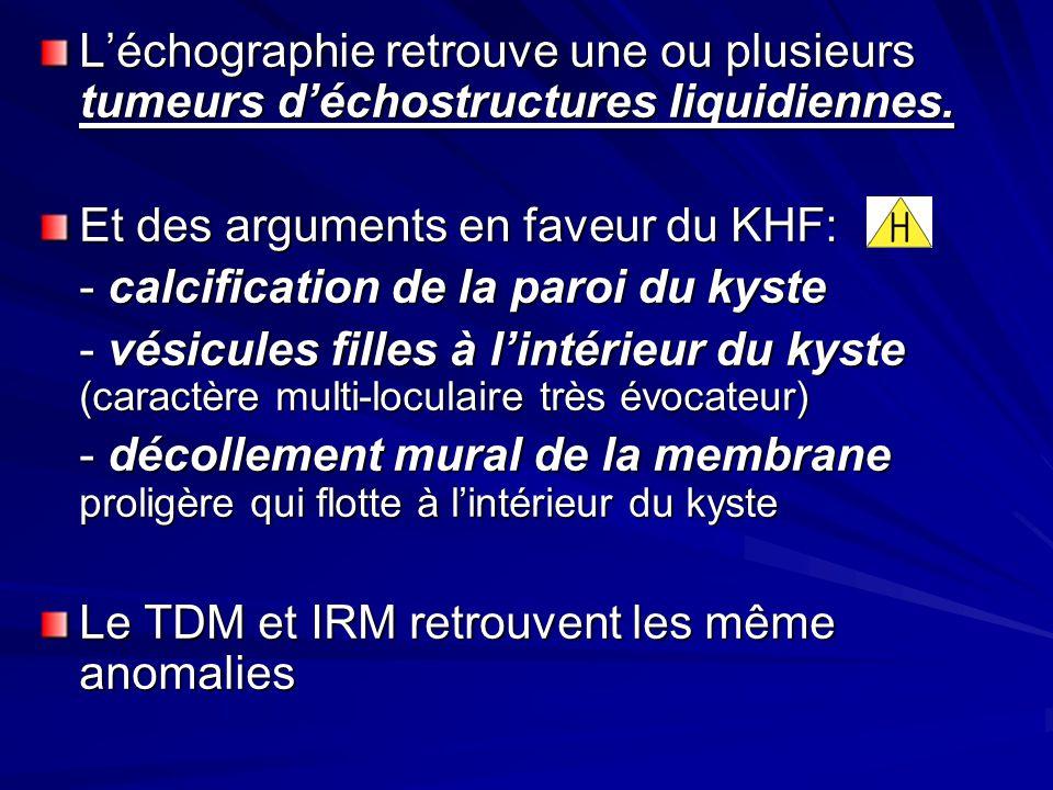 Léchographie retrouve une ou plusieurs tumeurs déchostructures liquidiennes. Et des arguments en faveur du KHF: - calcification de la paroi du kyste -
