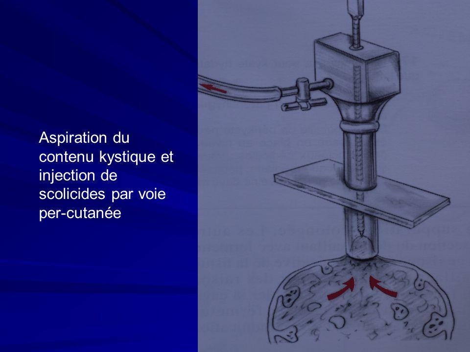 Aspiration du contenu kystique et injection de scolicides par voie per-cutanée
