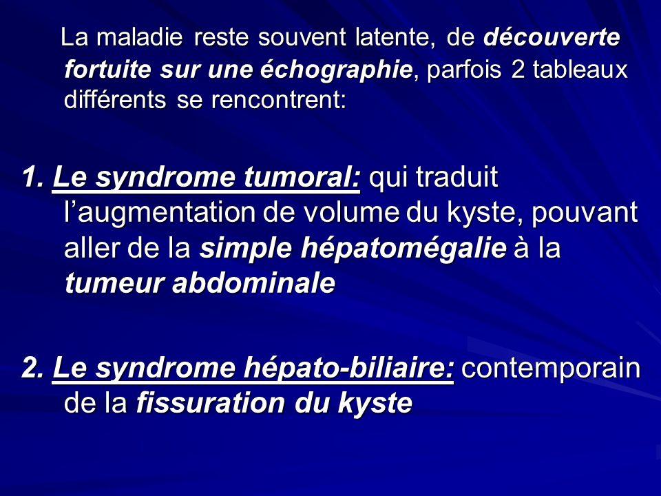 La maladie reste souvent latente, de découverte fortuite sur une échographie, parfois 2 tableaux différents se rencontrent: La maladie reste souvent l
