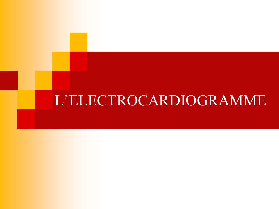 DEFINITIONS ELECTROCARDIOGRAPHIE Représentation graphique de lactivité électrique du myocarde grâce à des électrodes qui captent la polarisation et la dépolarisation des oreillettes et des ventricules ELECTROCARDIOGRAMME Tracé papier de lactivité électrique dans le cœur