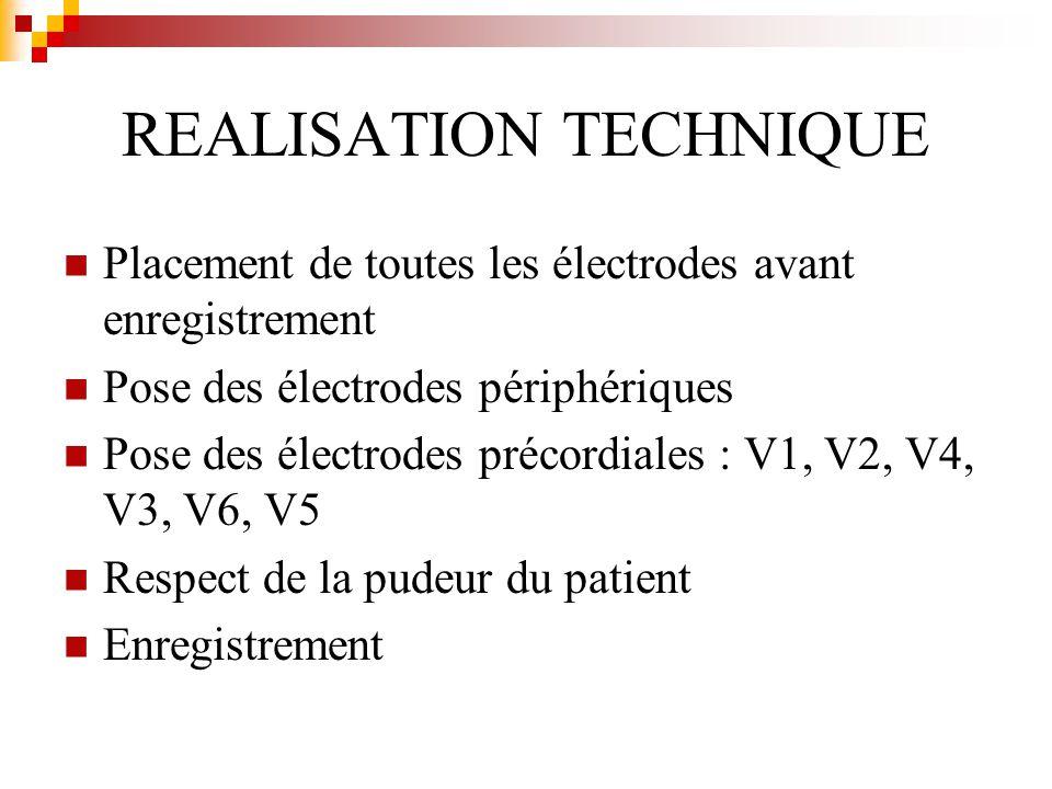 REALISATION TECHNIQUE Placement de toutes les électrodes avant enregistrement Pose des électrodes périphériques Pose des électrodes précordiales : V1,