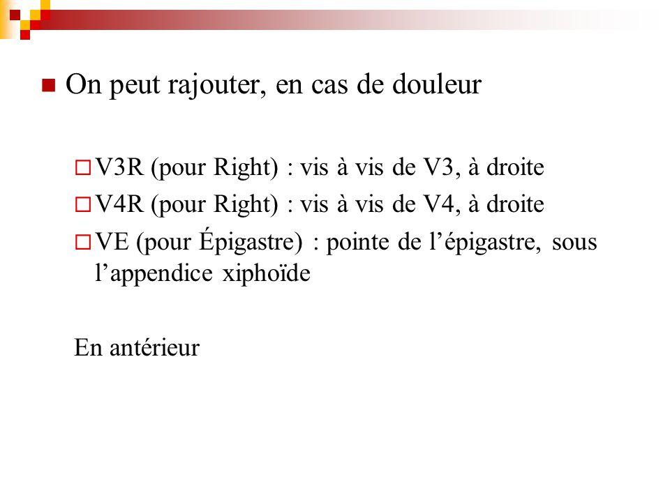 On peut rajouter, en cas de douleur V3R (pour Right) : vis à de V3, à droite V4R (pour Right) : vis à de V4, à droite VE (pour Épigastre) : pointe de
