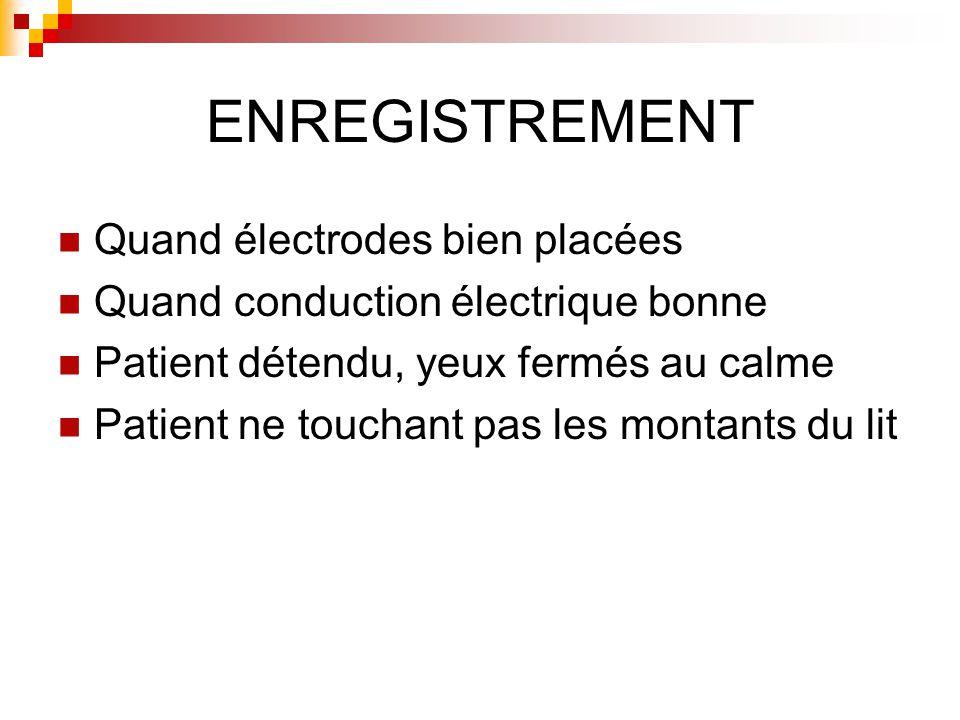 ENREGISTREMENT Quand électrodes bien placées Quand conduction électrique bonne Patient détendu, yeux fermés au calme Patient ne touchant pas les monta