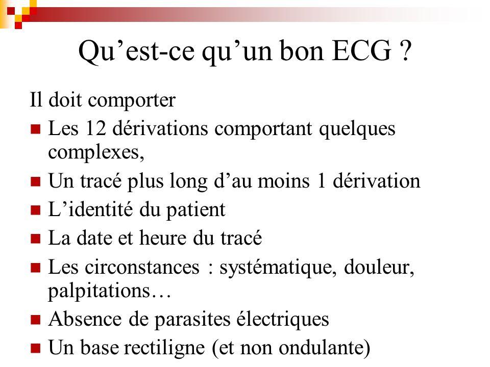 Quest-ce quun bon ECG ? Il doit comporter Les 12 dérivations comportant quelques complexes, Un tracé plus long dau moins 1 dérivation Lidentité du pat