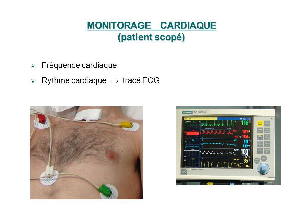 MONITORAGE CARDIAQUE (patient scopé) Fréquence cardiaque Rythme cardiaque tracé ECG