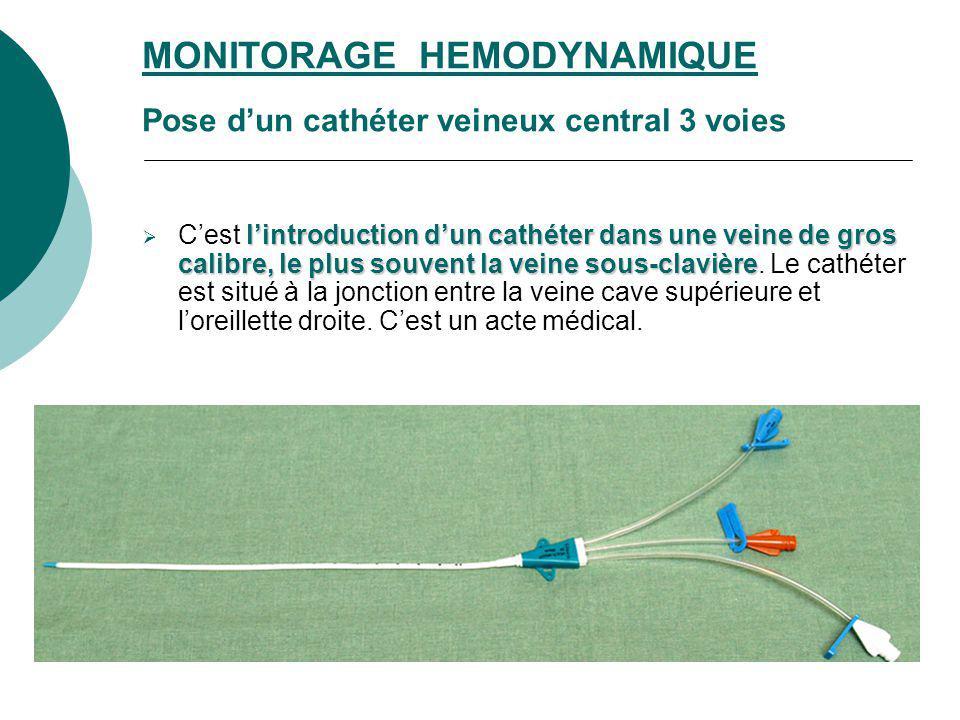 lintroduction dun cathéter dans une veine de gros calibre, le plus souvent la veine sous-clavière Cest lintroduction dun cathéter dans une veine de gr