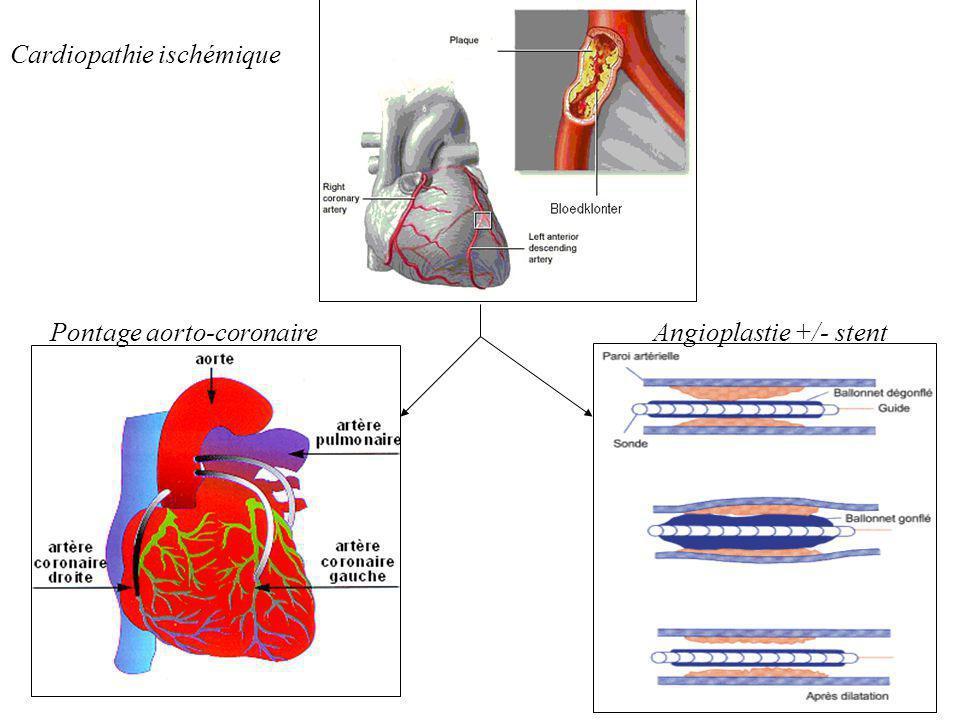 Angioplastie +/- stentPontage aorto-coronaire Cardiopathie ischémique