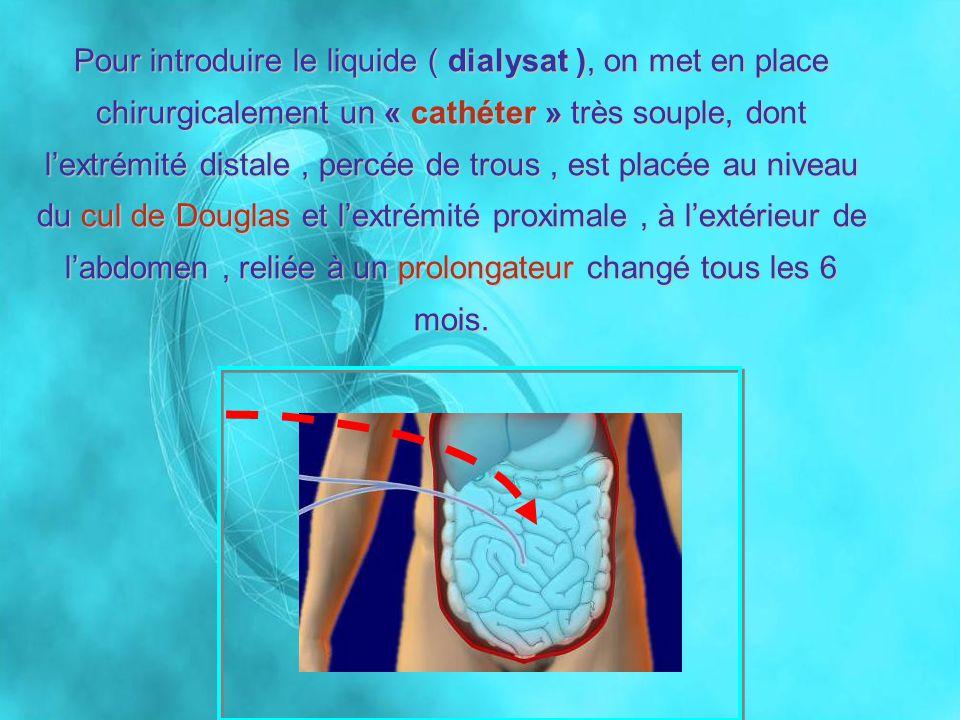 Pour introduire le liquide ( dialysat ), on met en place chirurgicalement un « cathéter » très souple, dont lextrémité distale, percée de trous, est p
