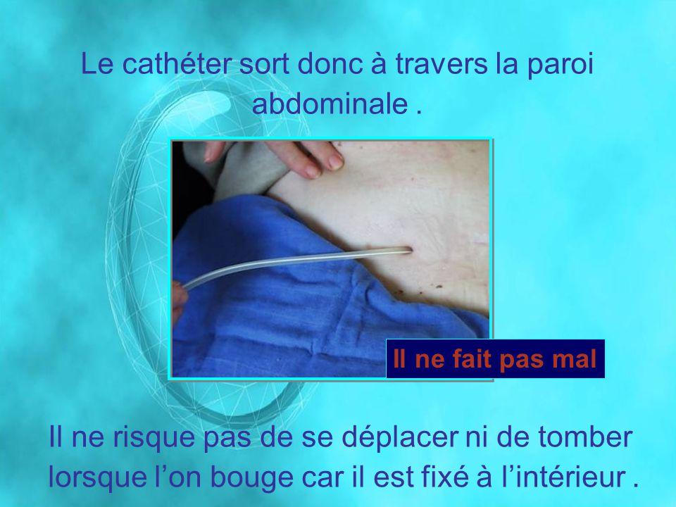 Le cathéter sort donc à travers la paroi abdominale. Il ne risque pas de se déplacer ni de tomber lorsque lon bouge car il est fixé à lintérieur. Il n