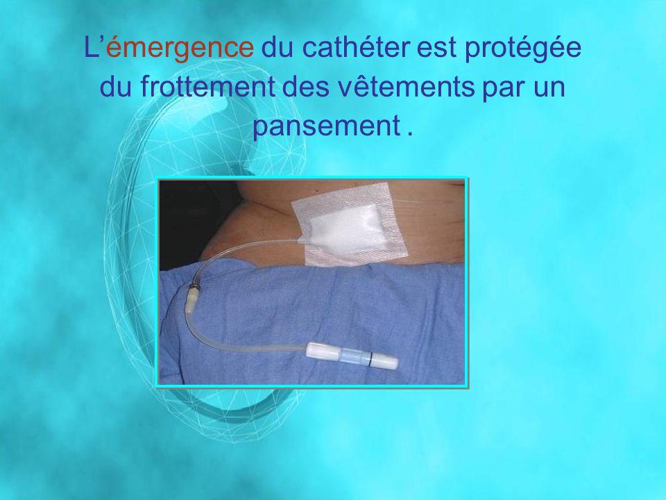 Lémergence du cathéter est protégée du frottement des vêtements par un pansement.