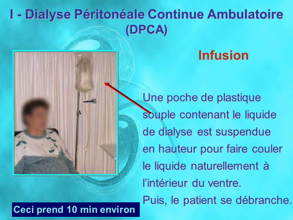 Infusion Une poche de plastique souple contenant le liquide de dialyse est suspendue en hauteur pour faire couler le liquide naturellement à lintérieu